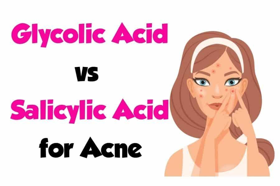 Glycolic Acid vs Salicylic Acid for Acne